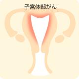 子宮体部がん